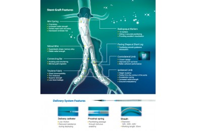 Hercules Bifurcated Stent-Graft System