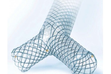 Y-Tracheal Stents